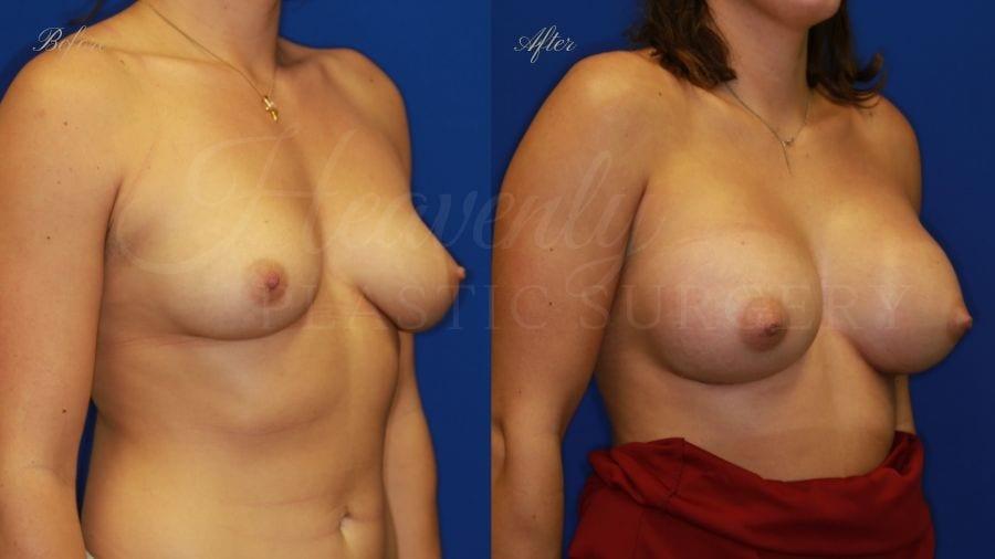Plastic surgery, plastic surgeon, breast augmentation, breast implants, augmentation mammaplasty, before and after breast augmentation, bigger breasts, bigger boobs