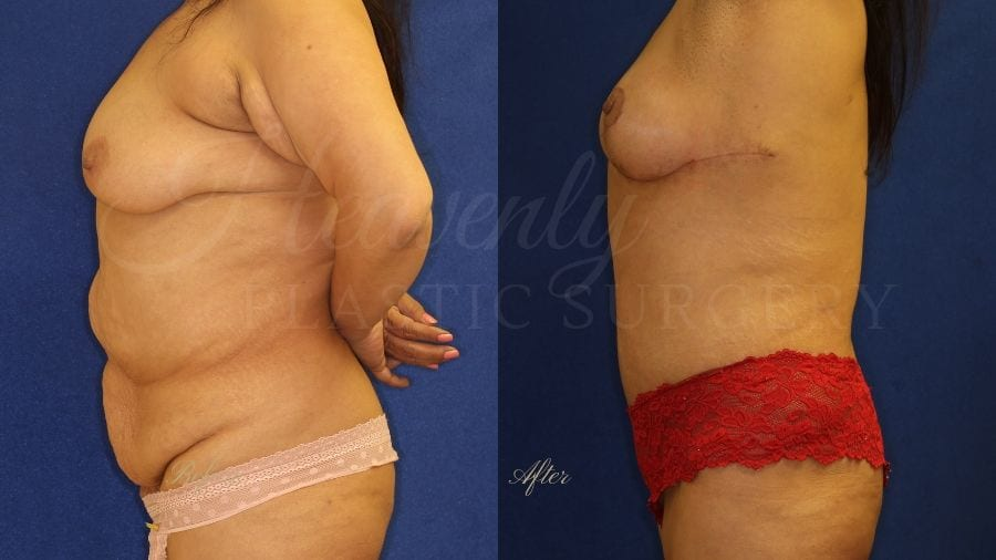 Mommy Makeover, Tummy Tuck, Abdominoplasty, Liposuction, Breast Lift, Mastopexy, before and after, plastic surgery, plastic surgeon