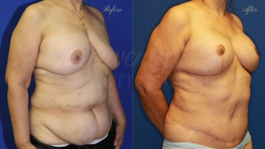 Mommy Makeover, Breast Augmentation, Breast Implants, Tummy Tuck, Abdominoplasty, Liposuction, Breast Lift, Mastopexy. before and after