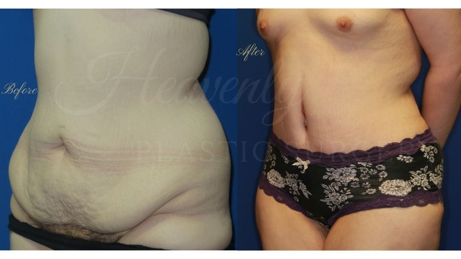 Plastic Surgery, plastic surgeon, tummy tuck, abdominoplasty