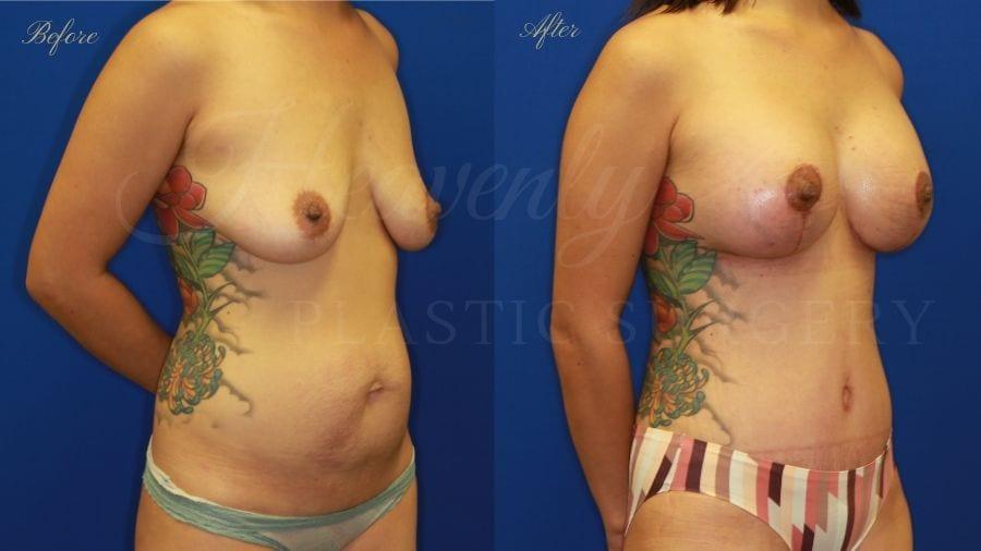 Mommy Makeover, Breast Augmentation, Breast Implants, Tummy Tuck, Abdominoplasty, Liposuction, Breast Lift, Mastopexy