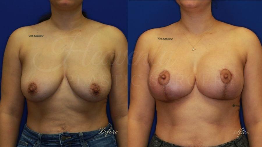 Plastic surgery, plastic surgeon, breast augmentation, breast lift, breast implants, mastopexy, mastoaug, mastopexy-augmentation, before and after