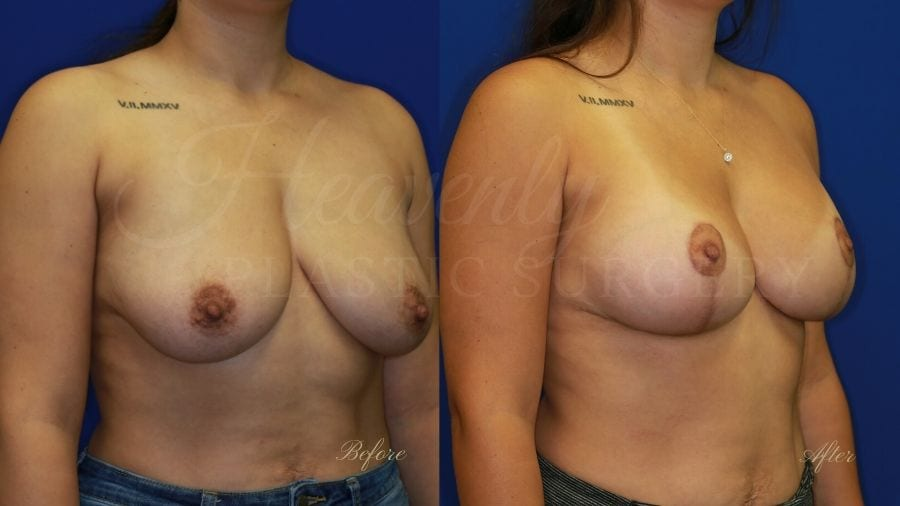 Breast Implants with Lift (Mastopexy-Augmentation - 275cc SRM Silicone under the muscle with Wise-pattern breast lift (anchor scar)