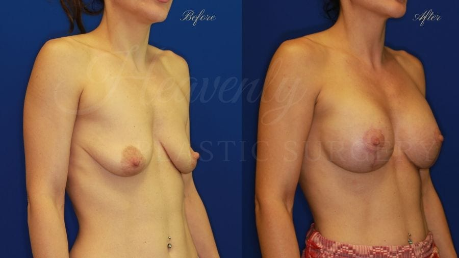 Mastopexy Augmentation (Breast Implants with Lift) - 310cc SRM Silicone breast implants with Wise-pattern breast lift (Anchor scar)