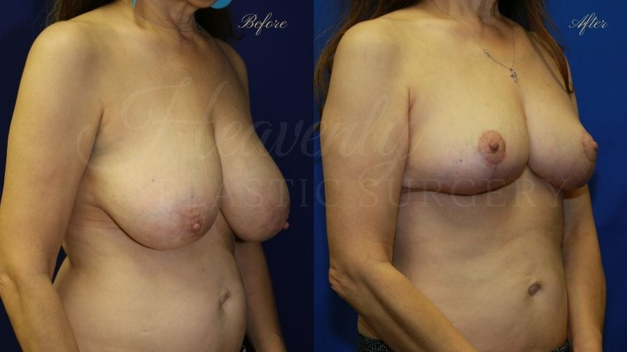Plastic surgery, plastic surgeon, before and after breast reduction, breast lift, mastopexy, reduction mammaplasty