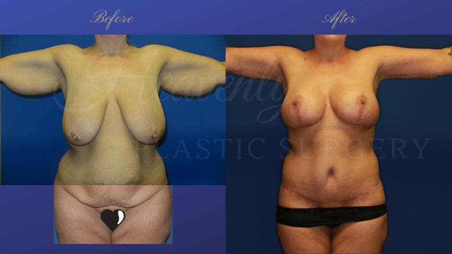 Mommy Makeover - Brachioplasty (Arm Lift), Breast Lift (Mastopexy) Breast Implants (330cc SRM silicone implants under the muscle), Body Lift, Liposuction