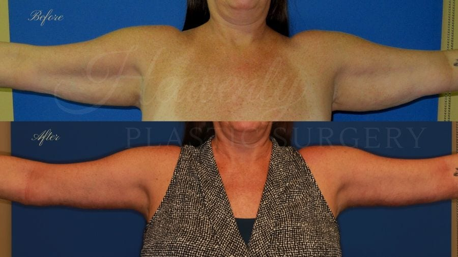 arm lift, extra arm skin, flabby arms, brachioplasty, before and after arm lift, plastic surgery, plastic surgeon, arm lift specialist, arm lift expert