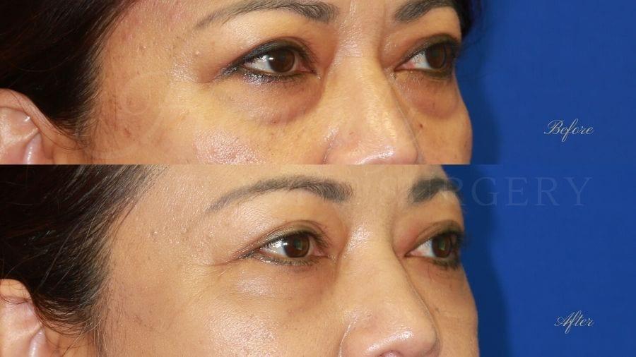 Plastic surgeon, plastic surgery, lower blepharoplasty, eyelid surgery, treating eyelid bags and dark circles under eyes