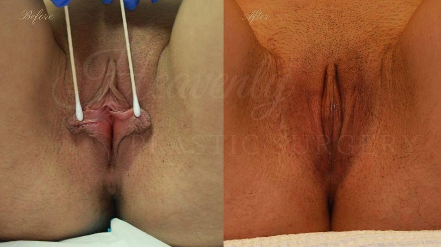 Labiaplasty, vaginal surgery, vaginal rejuvenation, vaginal reconstruction