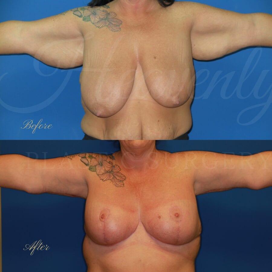 Plastic surgery, plastic surgeon, arm lift, breast lift, breast reduction, brachioplasty