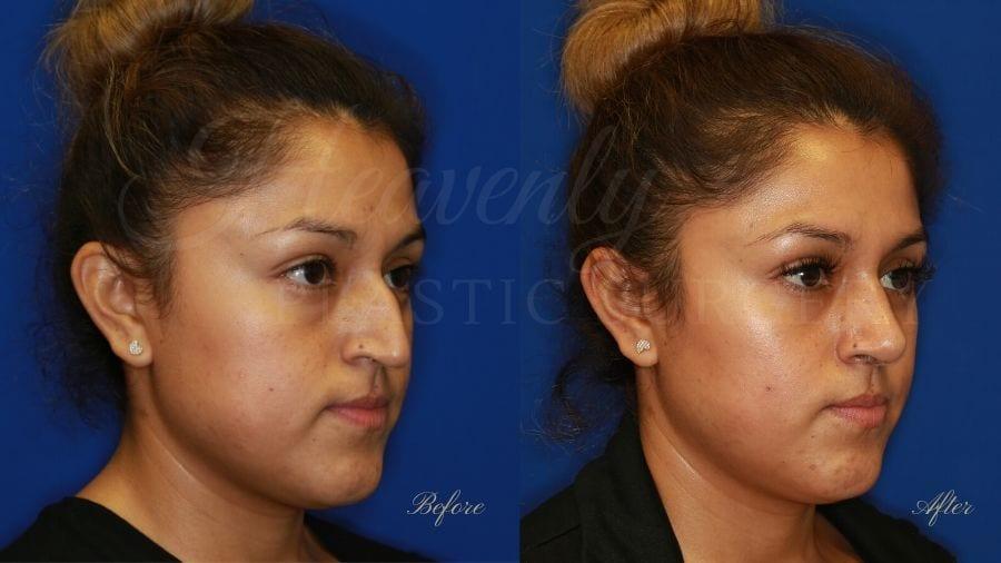 Plastic surgery, plastic surgeon, rhinoplasty, nose job, before and after rhinoplasty